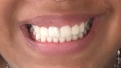 dentes com mock-up