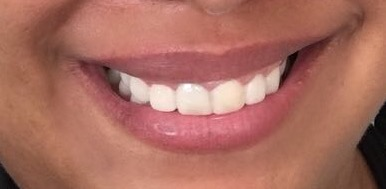 dentes com mock-up