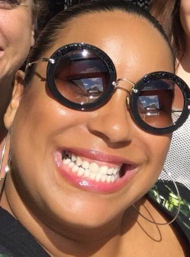 dentes sem lentes de contato