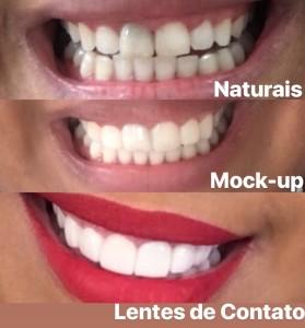 Lentes de Contato Dentais Resultado